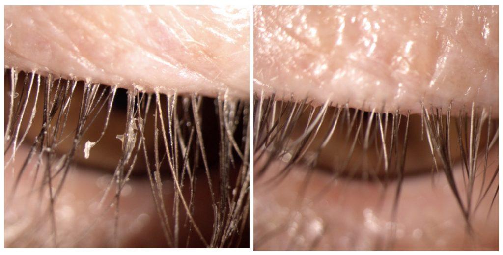 Droge ogen is niet normaal en wordt onderschat. Hier is sprake van blepharitis.