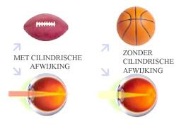 Astigmatisch oog